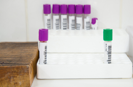 sample tray: Blood tube for testing in laboratory.