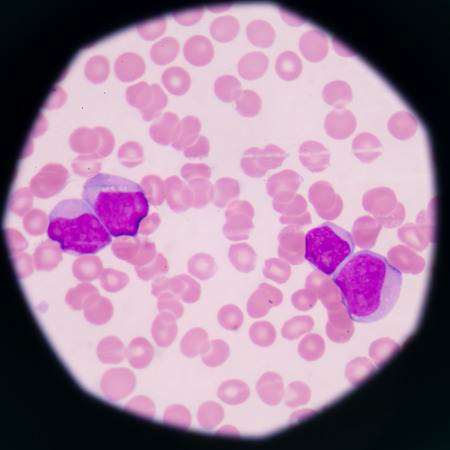 thalassemia: blood smear is often used as a follow-up test to abnormal results on a complete blood count (CBC) to evaluate the different types of blood cells.Medical science background showing blast cells(AML)