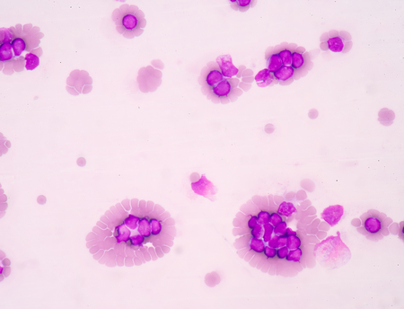 antigen response: blood smear is often used as a follow-up test to abnormal results on a complete blood count (CBC) to evaluate the different types of blood cells.Medical science background showing blast cells(AML)