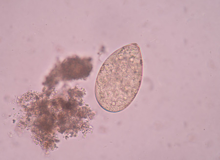 beneficial insect: Egg parasite in stool exam.