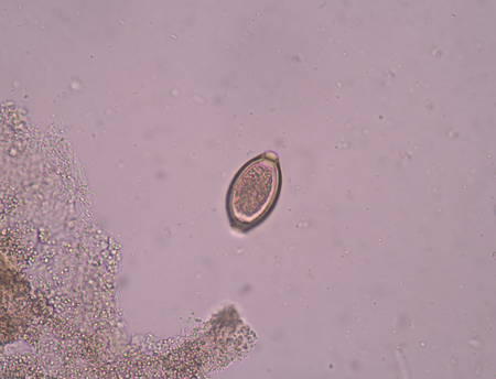 infective: Egg parasite in stool exam.
