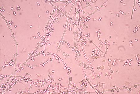 levadura: Fresh estructura de ramificación en ciernes células de levadura en la muestra de orina. Foto de archivo