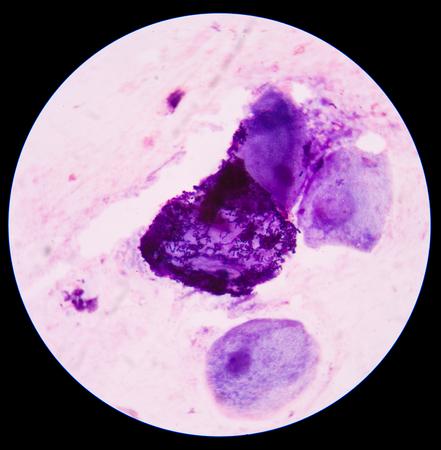 Bacteria medical background.