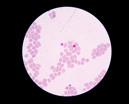 thrombocytopenia: Giant platelet disorders are rare disorders featuring abnormally large platelets, thrombocytopenia and a tendency to bleeding. Giant platelet disorder occurs for inherited diseases like Bernard-Soulier syndrome, gray platelet syndrome and May-Hegglin anom