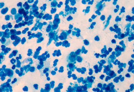 white blood cells: White blood cells in medical background concept. Foto de archivo