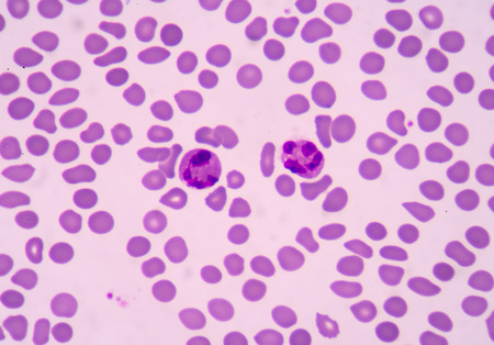 bactericidal: blood smear is often used as a follow-up test to abnormal results on a complete blood count (CBC) to evaluate the different types of blood cells.Neutrophil