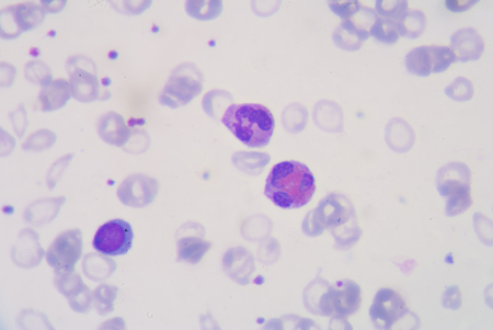 complete blood count: blood smear is often used as a follow-up test to abnormal results on a complete blood count (CBC) to evaluate the different types of blood cells.