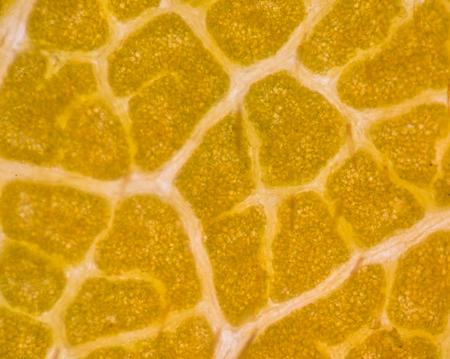 vacuole: Blur plant cells under microscope.