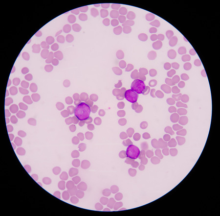 cytology: Blood cancer.The smear shows large number of cancer leukemia cells (large blue cells) with the smaller red to pink normal red blood cells or erythrocytes.