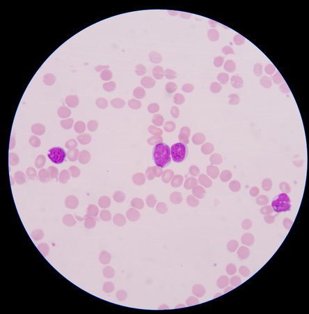 erythrocytes: Blood cancer.The smear shows large number of cancer leukemia cells (large blue cells) with the smaller red to pink normal red blood cells or erythrocytes.
