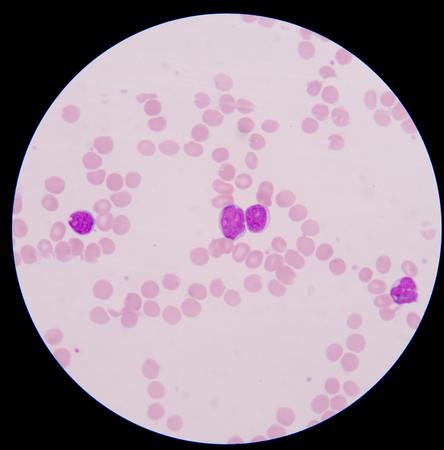 leucemia: Frotis de sangre cancer.The muestra gran n�mero de c�lulas de leucemia c�ncer (c�lulas grandes de color azul) con el rojo m�s peque�o al rosa gl�bulos rojos normales o eritrocitos. Foto de archivo