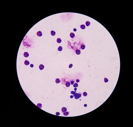 celulas humanas: Los glóbulos blancos en la tinción de Wright en el líquido cefalorraquídeo Foto de archivo