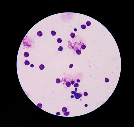 blood cells: White blood cells  in wright staining in Cerebrospinal fluid