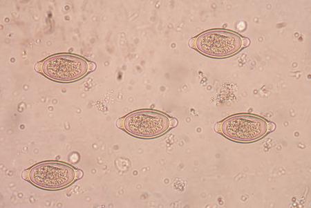 histology: The human whipworm (Trichuris trichiura or Trichocephalus trichiuris) in stool exam real sample.