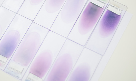 germ free: blood smear test or blood film. Two slides and a drop of blood and petri dishes in the background