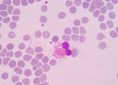 monocyte: The presence of eosinophils in these latter organs is associated with disease. Stock Photo