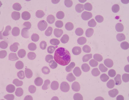 cytology: The presence of eosinophils in these latter organs is associated with disease. Stock Photo
