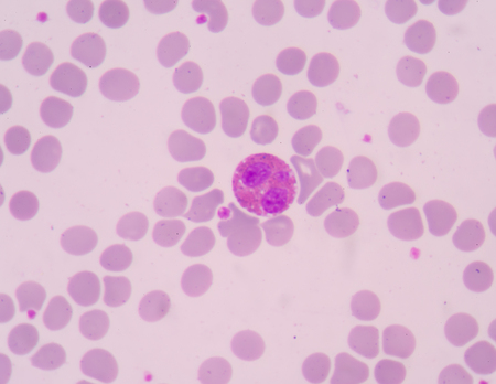 basophil: The presence of eosinophils in these latter organs is associated with disease. Stock Photo