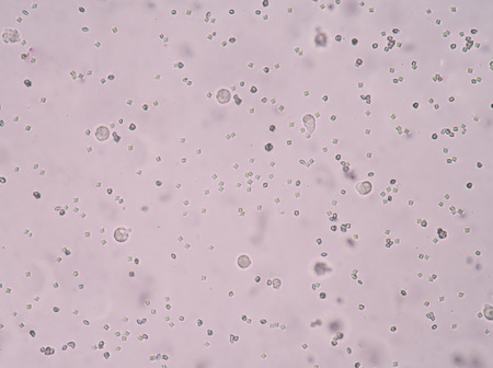 hydrochloric: calcium oxalate crystal in urine analysis.fine with microscope.