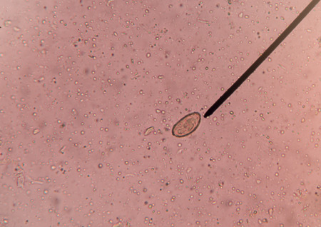 infective: egg of parasite in stool exam test fine with microscope.