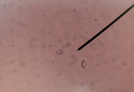 calcium: calcium oxalate crystal in urine analysis.fine with microscope.