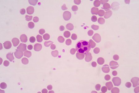 antigen response: blood smear is often used as a follow-up test to abnormal results on a complete blood count (CBC) to evaluate the different types of blood cells.