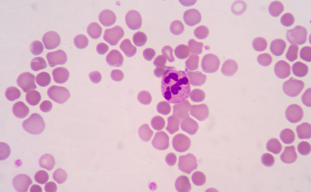 progenitor: blood smear is often used as a follow-up test to abnormal results on a complete blood count (CBC) to evaluate the different types of blood cells.