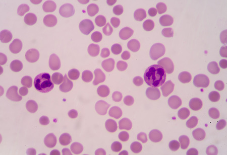 bloodcell: blood smear is often used as a follow-up test to abnormal results on a complete blood count (CBC) to evaluate the different types of blood cells.