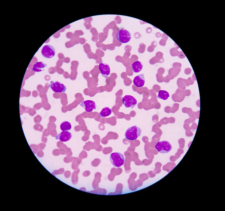 complete blood count: blood smear is often used as a follow-up test to abnormal results on a complete blood count (CBC) to evaluate the different types of blood cells.Blast cells