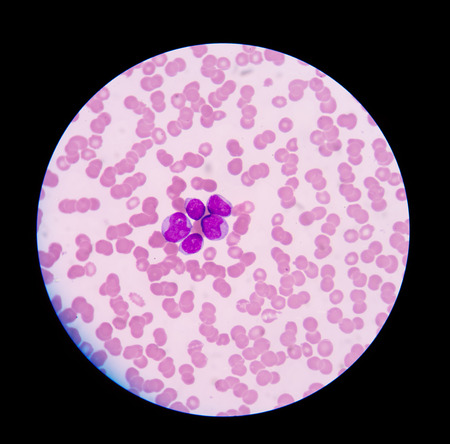 abnormal cells: blood smear is often used as a follow-up test to abnormal results on a complete blood count (CBC) to evaluate the different types of blood cells.Blast cells