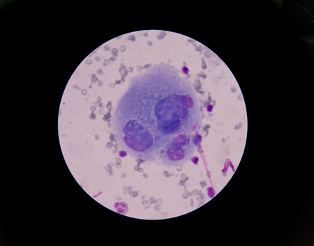 malignant cells: malignant cells with multiple nuclei and prominent nucleoli. Stock Photo