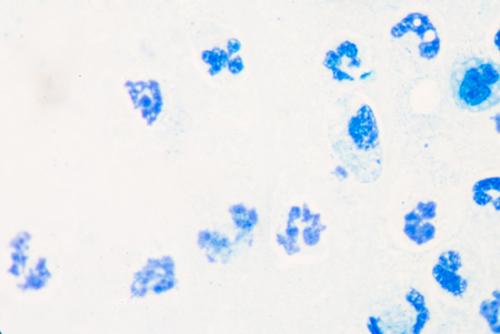 microbial: showing a blue white blood cell under microscope.