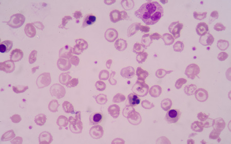 erythrocyte: Blood smear from Patients with anemia showing abnormal red blood cell hypochromia,maccrocyte. Stock Photo