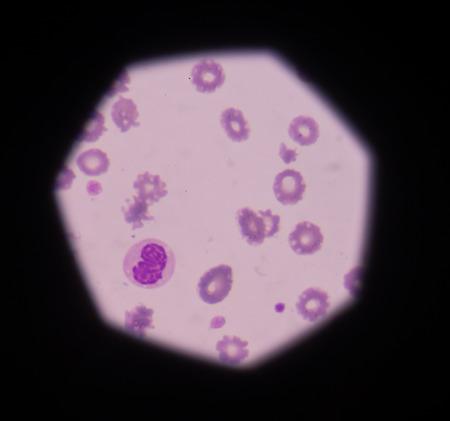 bactericidal: medical background