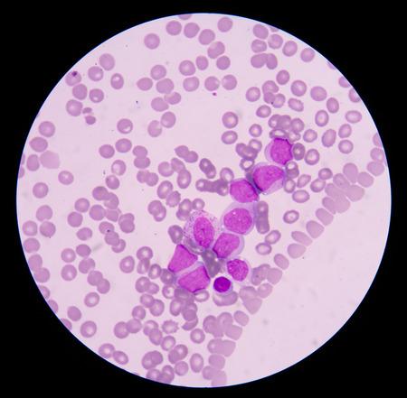 hemorragia: El problema m�s com�n con el mal funcionamiento de mieloblastos es la leucemia mielobl�stica aguda. Las principales caracter�sticas cl�nicas son causadas por el fracaso de la hematopoyesis con la anemia, hemorragia e infecci�n como consecuencia de ello. Foto de archivo