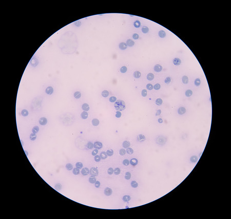 neutrophil: Reticulocytes develop and mature in the bone marrow and then circulate for about a day in the blood stream before developing into mature red blood cells. Stock Photo