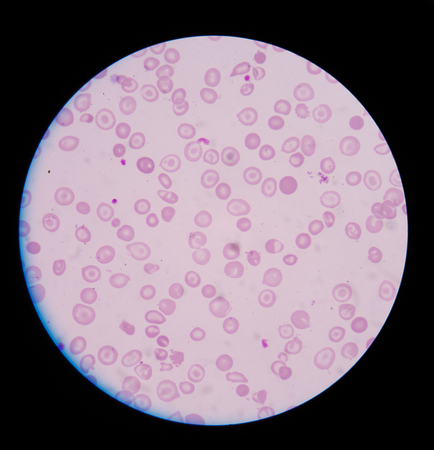 abnormal cells: Blood smear CBC test showing abnormal red blood cells hypochromia with target cells.medical background concept. Stock Photo