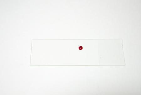 slide glass: blood drops on glass slide Stock Photo
