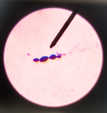 filamentous: Budding yeast cells in sputum gram stain fine with Microscope 100x. Stock Photo