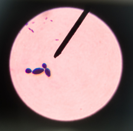 infective: Budding yeast cells in sputum gram stain fine with Microscope 100x. Stock Photo