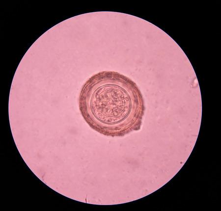 embryonic: Hymenolepis diminuta parasite egg in stool exam.