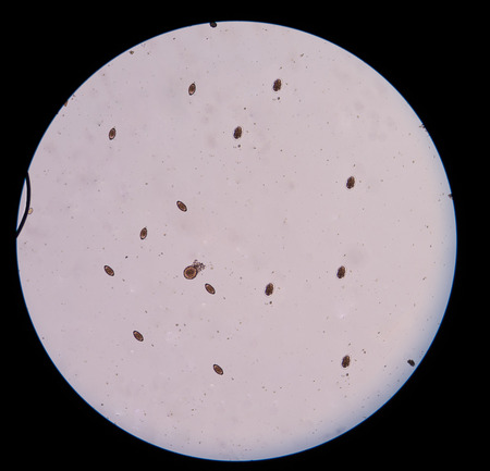 embryonic: eggs parasite
