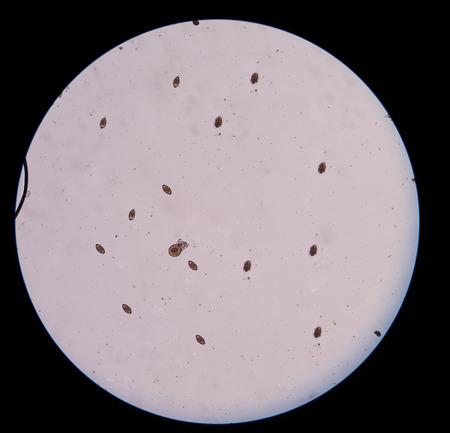 anal: eggs parasite