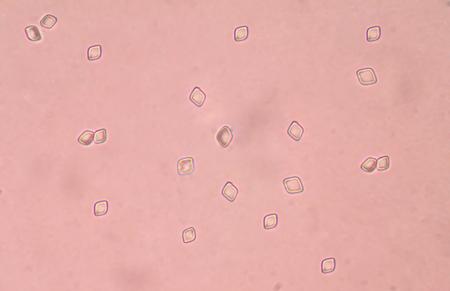 uric: Uric acid crystal in urine sediment.