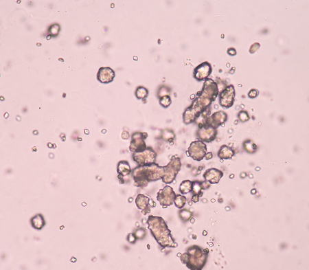 acido: cristales de ácido úrico en el sedimento de orina.