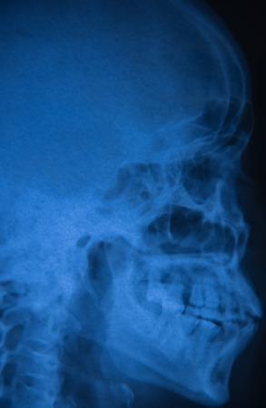 cva: View of  film x-ray skull of human in blue tone.