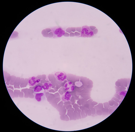abnormal cells: blood smear is often used as a follow-up test to abnormal results on a complete blood count (CBC) to evaluate the different types of blood cells.