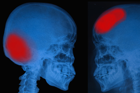 cva: View of film x-ray skull of human