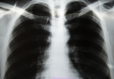 metastasis: Chest x-ray Stock Photo