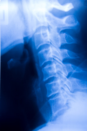 spinal column: film x-ray of Spinal Column. Stock Photo